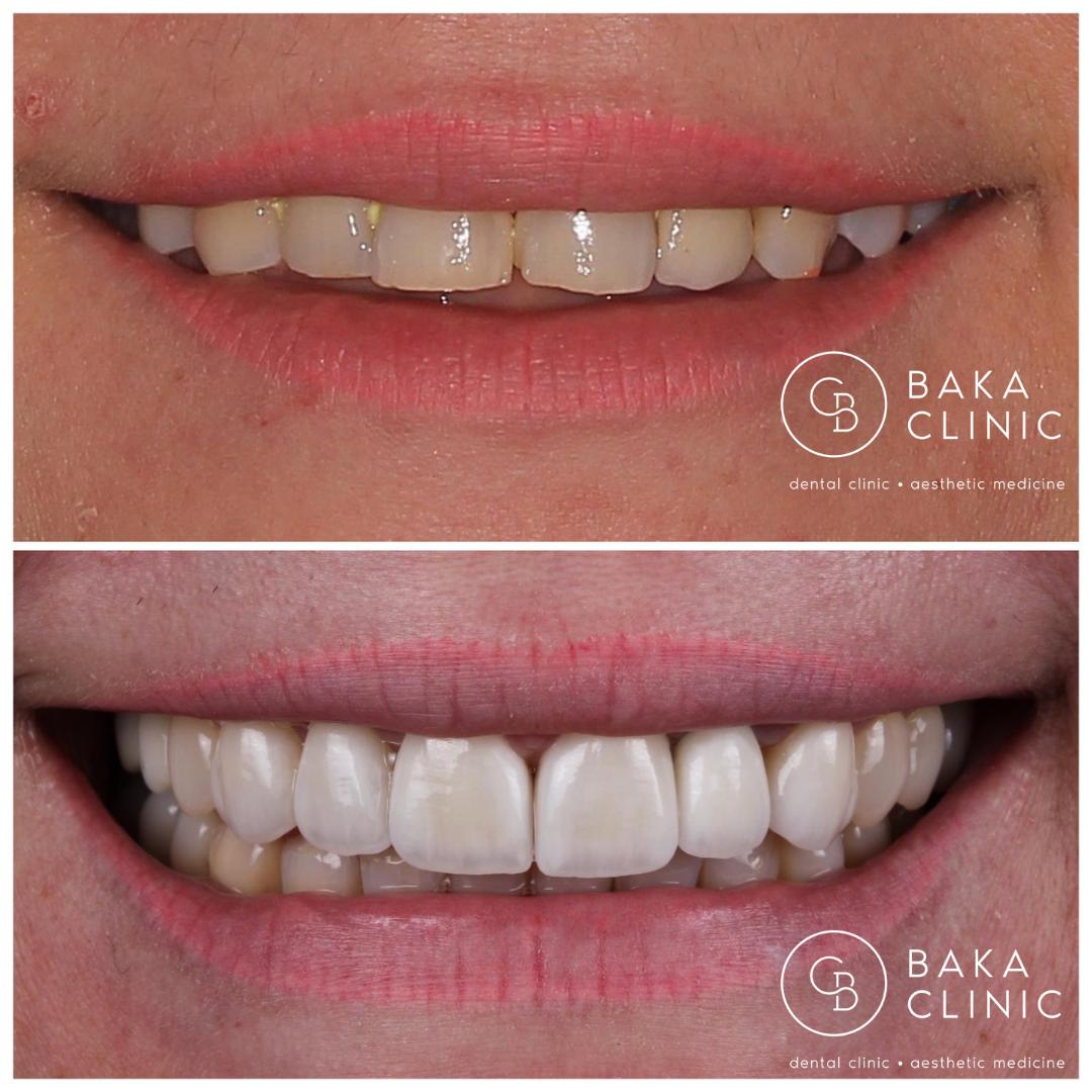Metamorfoza uśmiech - Baka Clinic - Świnoujście